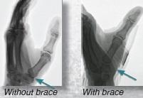 CMC Brace IV